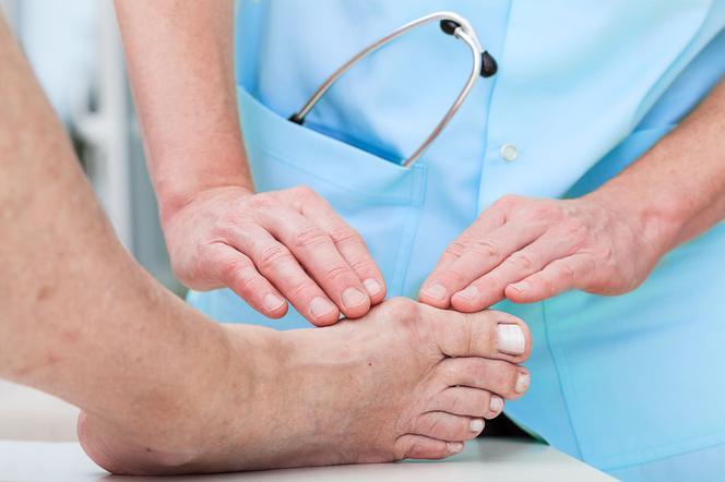 ¿Cuáles son los mejores tratamientos para los problemas del hallux?