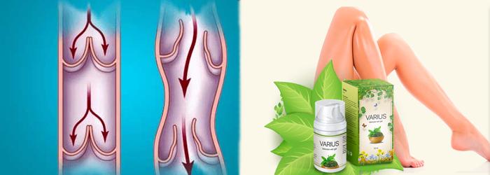 ¿Cómo aplicar la crema Varius para las varices?